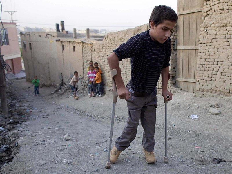 fakta penyakit polio