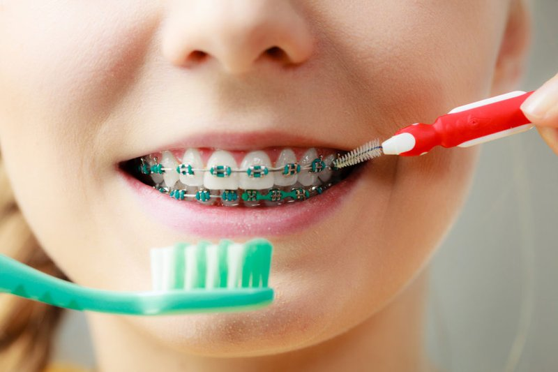 Perbaiki teknik menyikat gigi.jpeg