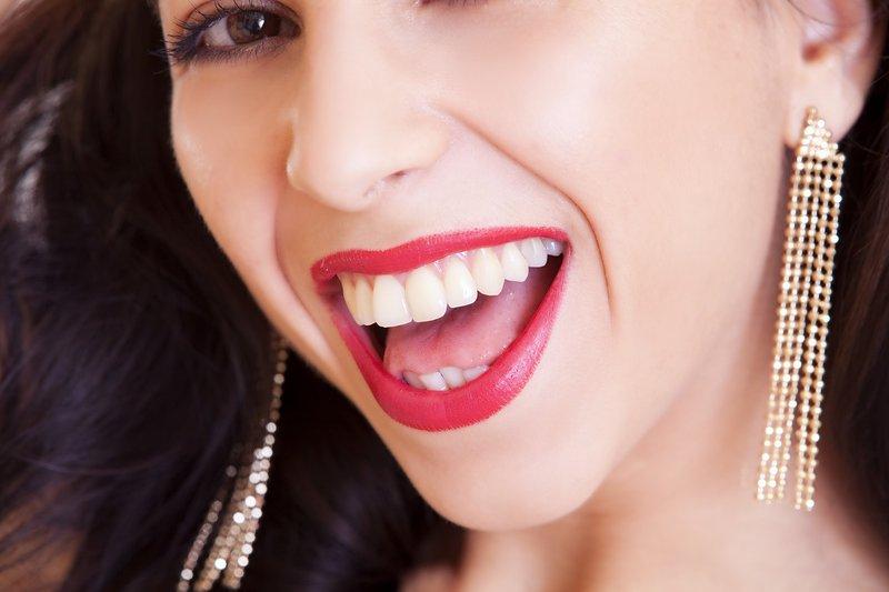 10 yang Harus Diketahui Sebelum Melakukan Veneer Gigi2.jpg