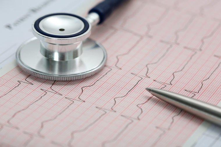 1 - Golongan Darah Bisa Jelaskan Kesehatan Tubuh Kita.jpg