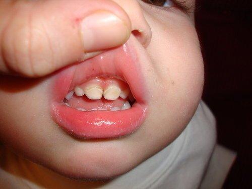3 Hal Tentang Gigi Berlubang pada Bayi yang Harus Diwaspadai -1.jpg