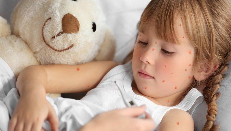 merawat anak yang sakit cacar