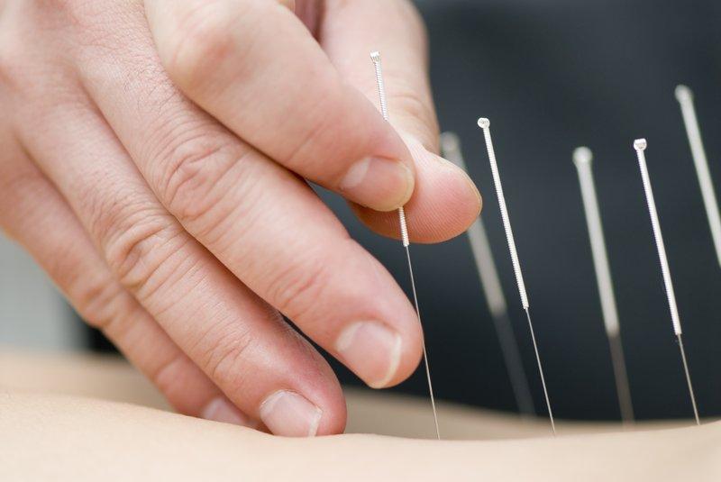 akupunktur untuk meringankan nyeri punggung saat hamil