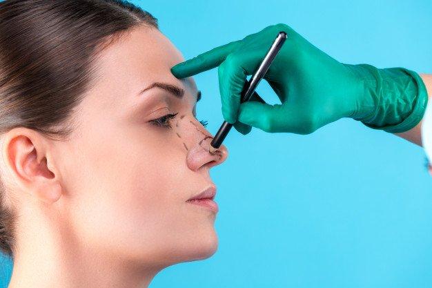 4 Cara Memancungkan Tulang Hidung -1.jpg