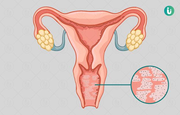 4 Jenis Infeksi Vagina Selama Kehamilan, Simak di Sini! - Bacterial Vaginosis.png