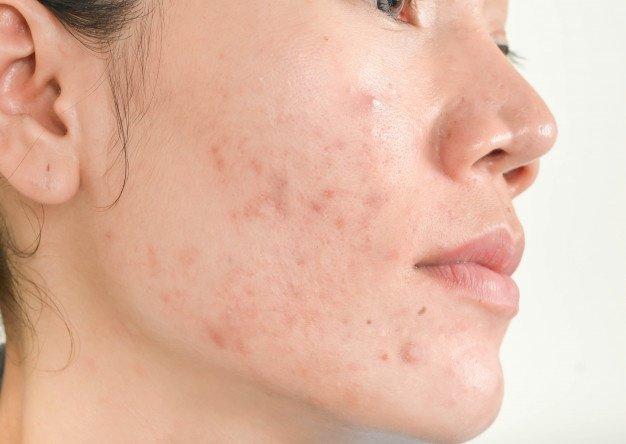 4 Tanda Kulit Tidak Cocok dengan Skincare-1.jpg