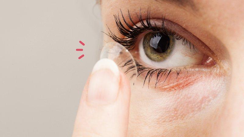 5 Bahaya Memakai Softlens Setiap Hari - Penyebab Mata Gatal