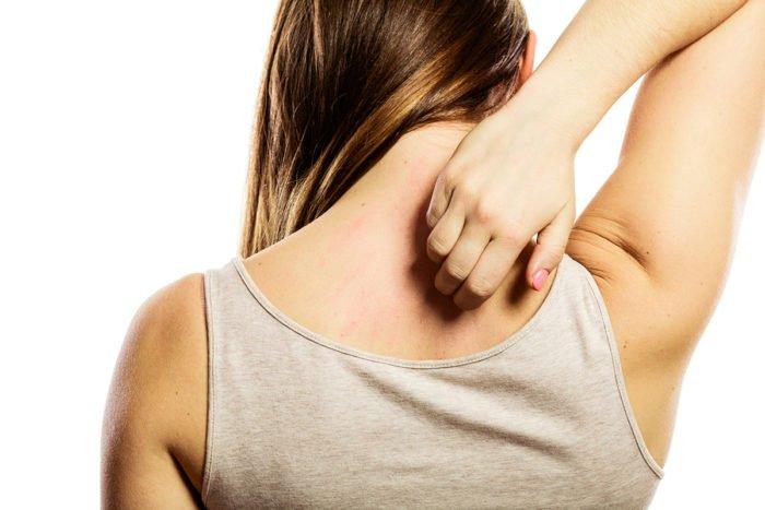 5 - 5 Fakta Tentang Penyakit Selulitis.jpg