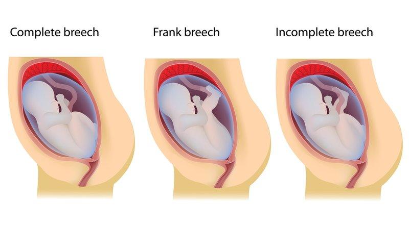 5 - 6 Risiko Komplikasi Bayi Sungsang Setelah Lahir.jpg