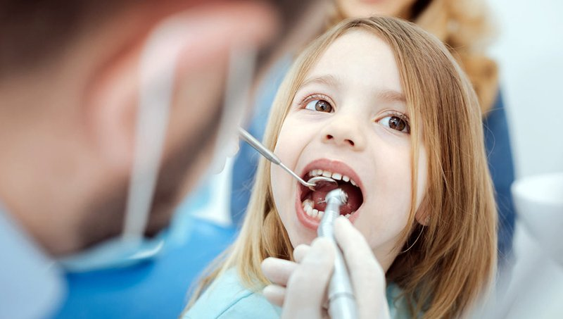 cara membersihkan karang gigi-3