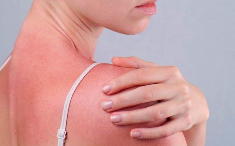5 Tanda Alergi Semen Setelah Hubungan Seks - 1.jpg