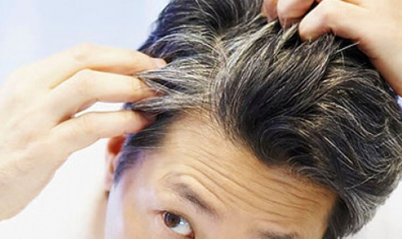 6 Fakta Tentang Rambut Beruban yang Wajib Moms Tau -1.jpg