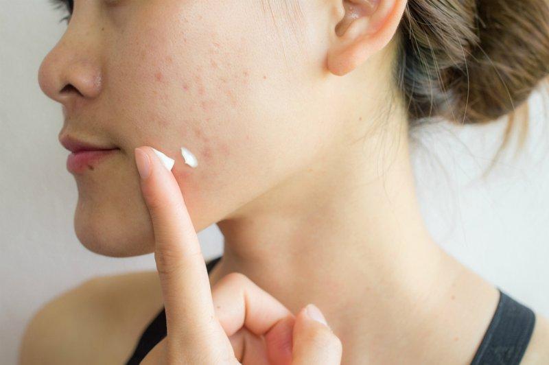manfaat madu untuk kulit-obat jerawat