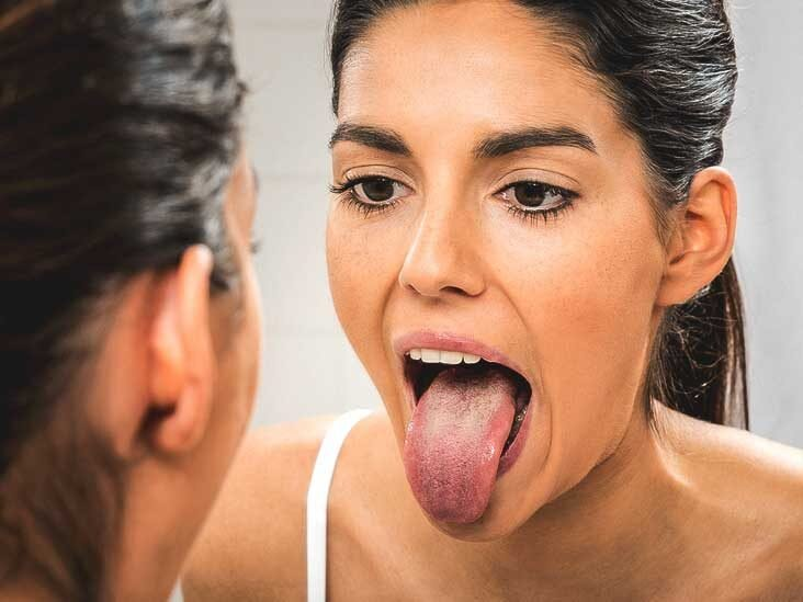 lidah sehat