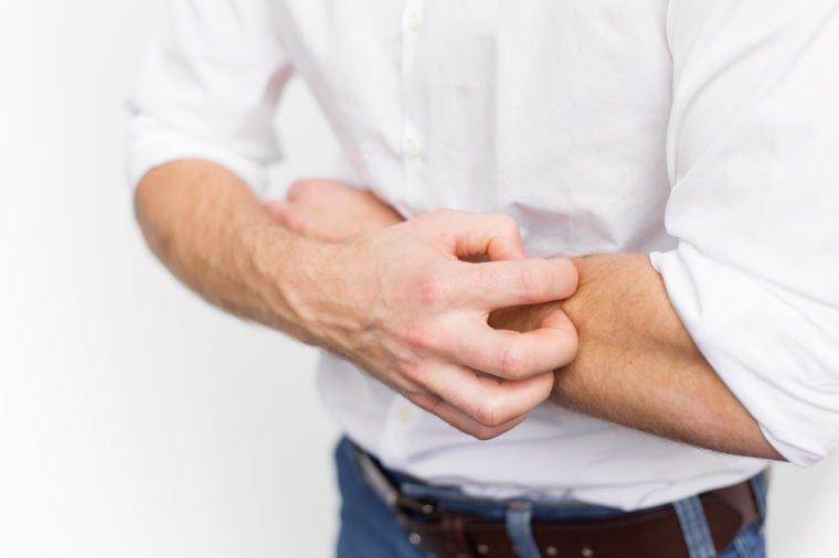 7 Penyakit yang Ditandai Kulit Gatal, Salah Satunya Sakit Ginjal! 01.jpg