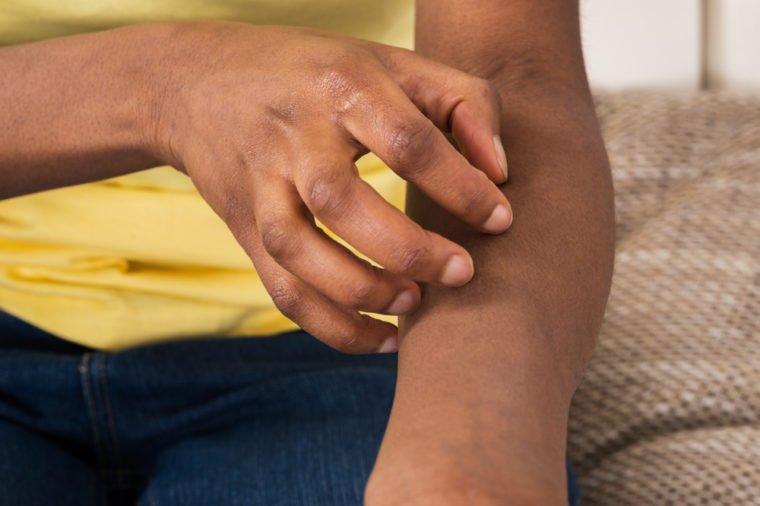 7 Penyakit yang Ditandai Kulit Gatal, Salah Satunya Sakit Ginjal! 03.jpg