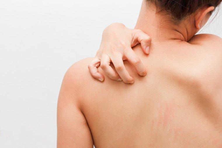 7 Penyakit yang Ditandai Kulit Gatal, Salah Satunya Sakit Ginjal! 04.jpg