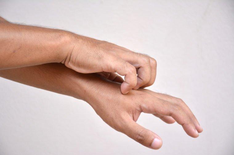 7 Penyakit yang Ditandai Kulit Gatal, Salah Satunya Sakit Ginjal! 05.jpg