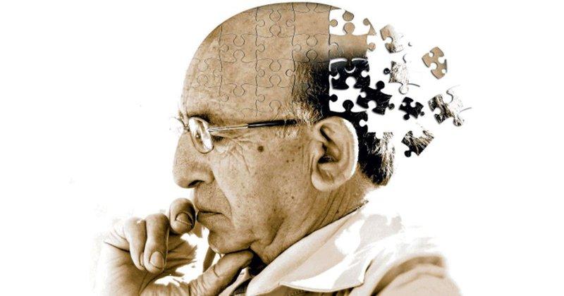 Alzheimer 3.jpg