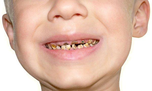 Bagian Gigi yang Sering Terkena Karies pada Anak-2.jpg
