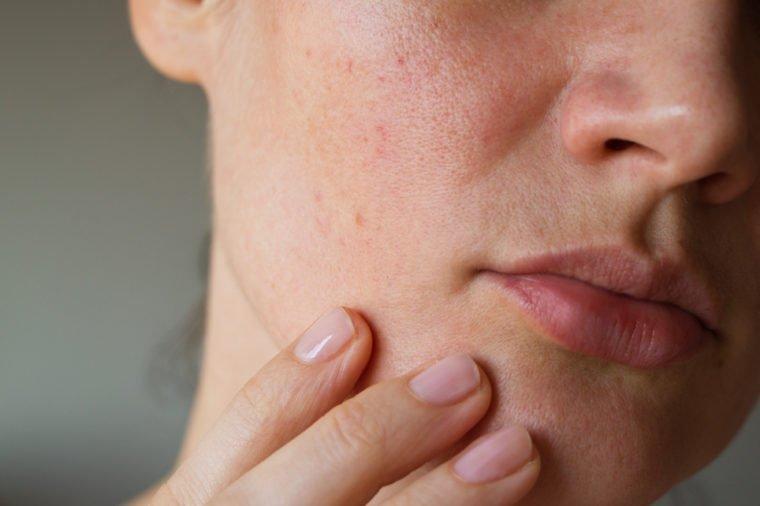 Bahaya Facial untuk Kulit-2.jpg