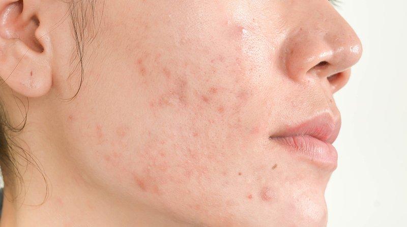 Bahaya Facial untuk Kulit-4.jpg