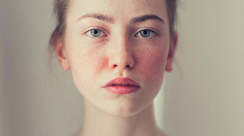 penyebab iritasi karena makeup