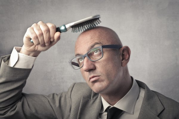 Baldness photo via Shutterstock (1).jpg