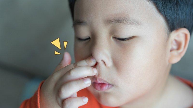 polip hidung bengkak