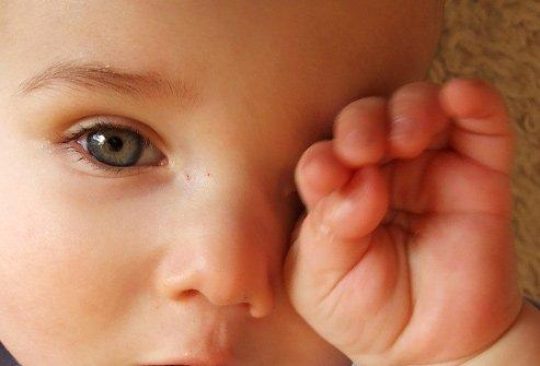 Bintil pada Bayi Apakah Berbahaya -1.jpg