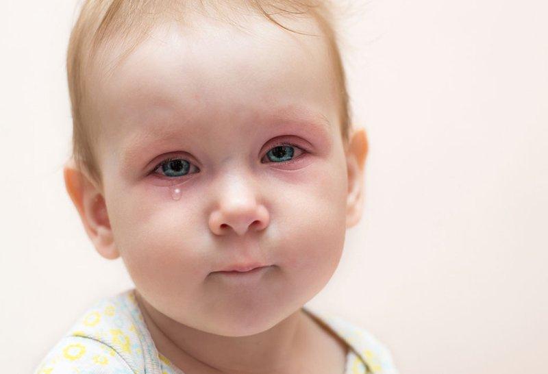 Bintil pada Bayi Apakah Berbahaya -4.jpg