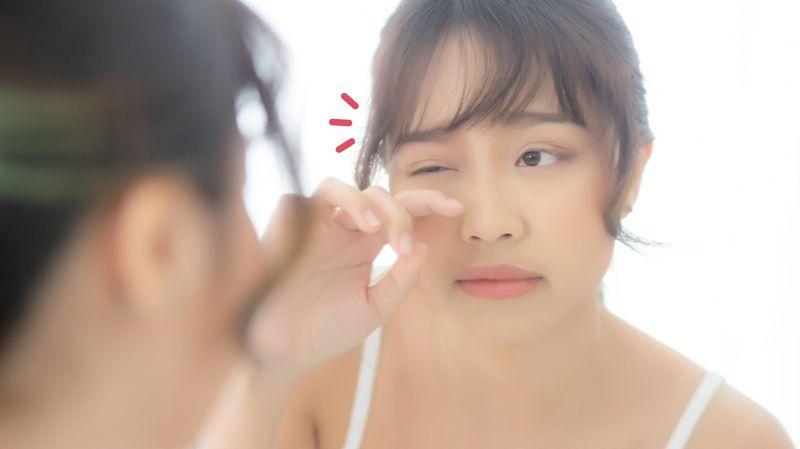 Cara Menghilangkan Jerawat Batu Kecil Di Bawah Kelopak Mata