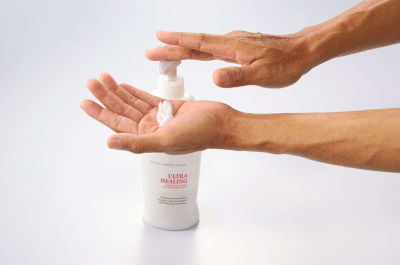 Cara Mengatasi Telapak Tangan Gatal