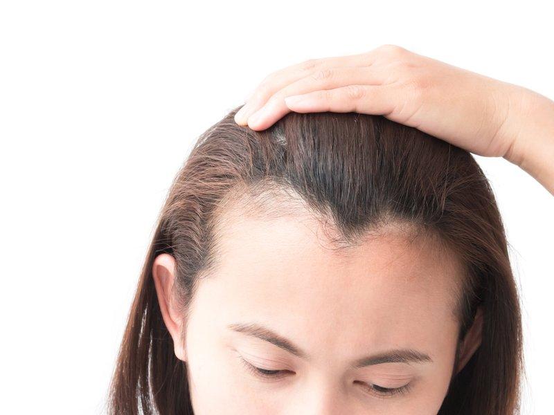 Cara Menumbuhkan Rambut di Jidat