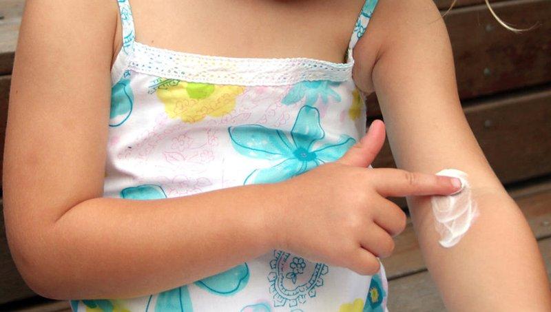 losion untuk biang keringat bayi