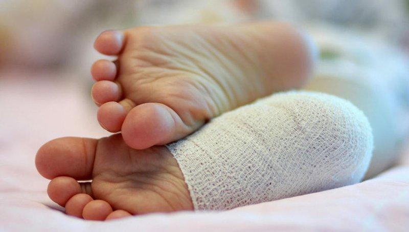 Cegah Infeksi, Perhatikan 4 Langkah Perawatan Luka Di Telapak Kaki Balita 3.jpg