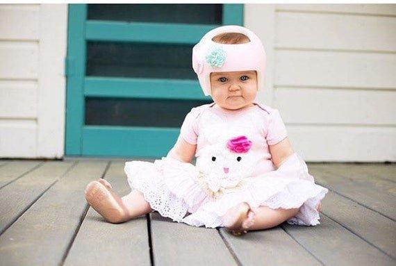 Cegah Plageochepaly Apakah Bayi Membutuhkan Helm Khusus -1.jpg