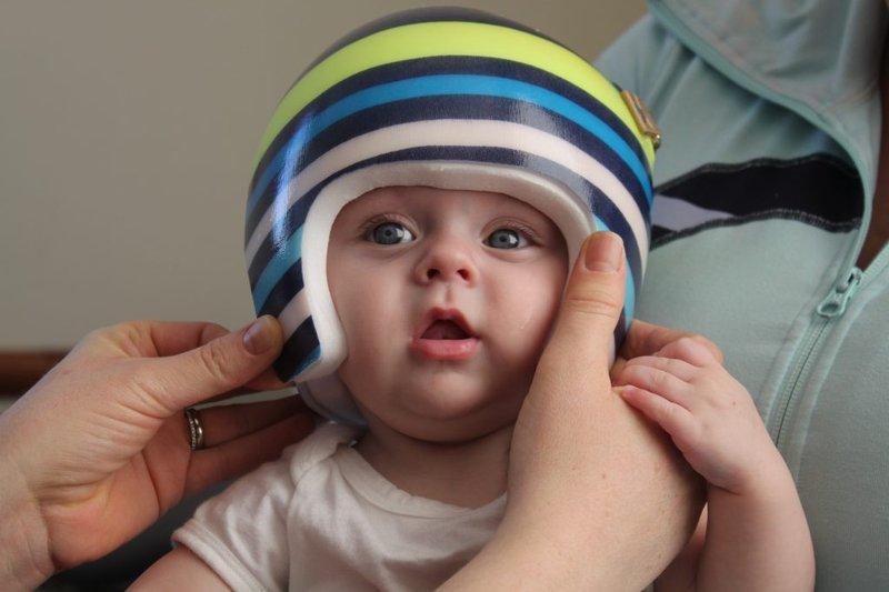 Cegah Plageochepaly Apakah Bayi Membutuhkan Helm Khusus -2.jpg