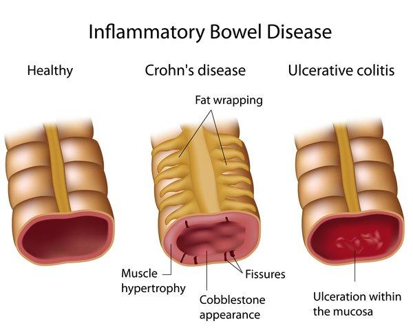 Crohn's disease.jpeg