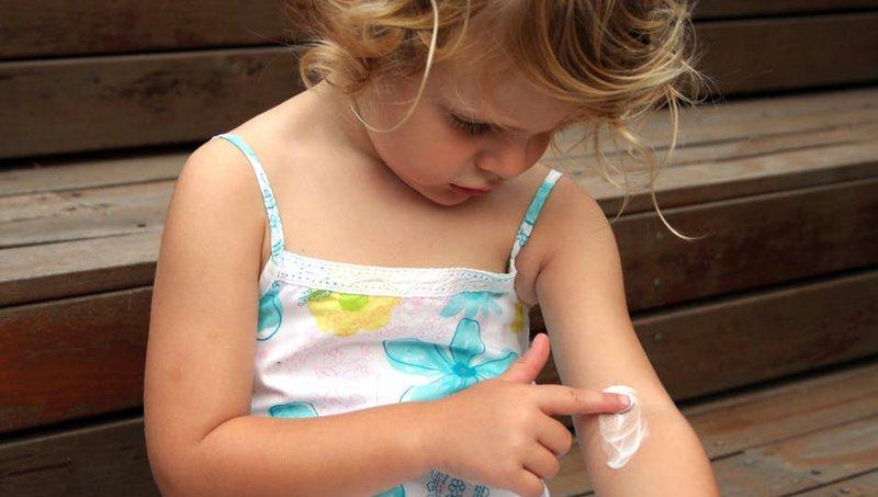 Dermatitis Kontak Pada Balita Gejala, Penyebab dan Pengobatannya 3.jpg