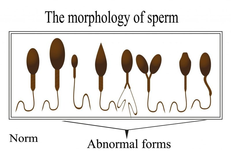 Bentuk Sperma Abnormal.jpeg