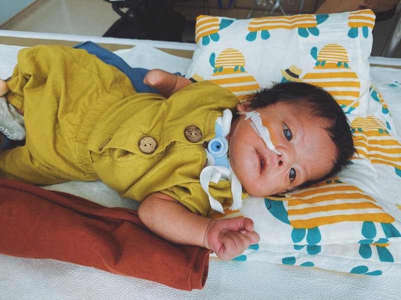 moebius syndrome, sindrom tanpa ekspresi yang diderita anak dr. andreas kurniawan (@ndreamon)