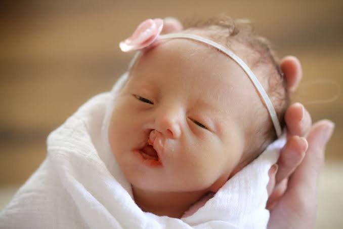 edwards syndrom pada bayi