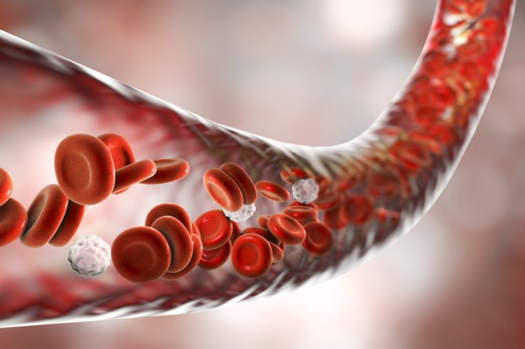 Efek Negatif Darah Tinggi - 3.jpg