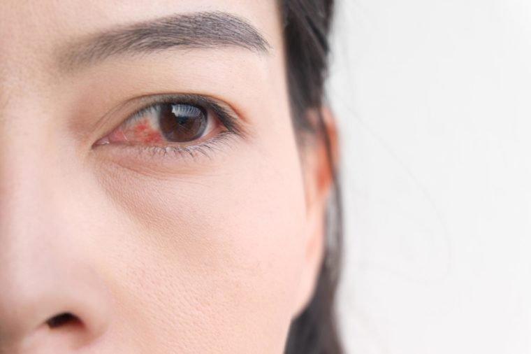 Efek Negatif Darah Tinggi - 5.jpg