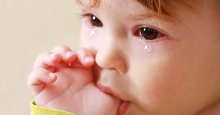 epiphora pada bayi