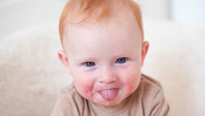 Fifth Disease Pada Anak Gejala, Penyebab, dan Pengobatannya 1.jpg