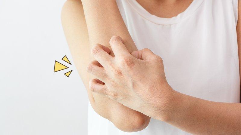 Pilihan Obat untuk Mengatasi Gatal-gatal Akibat Alergi