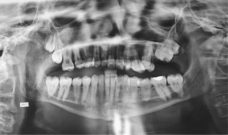 Gejala Penyakit Tulang Rapuh pada Balita.jpg