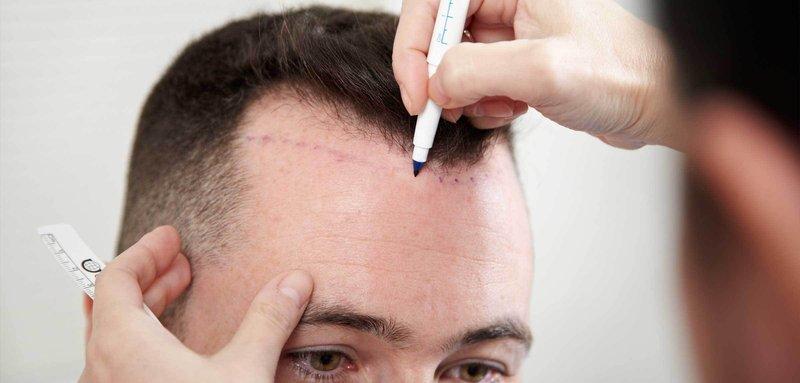 Hair-Transplant-Procedure.jpg